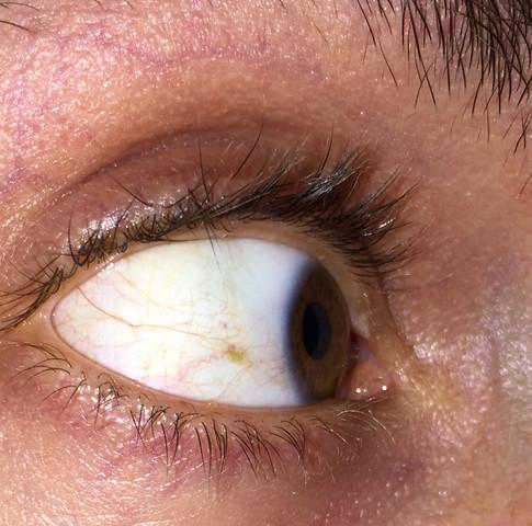 Gelber Fleck Im Augenweiß Gesundheit Augen