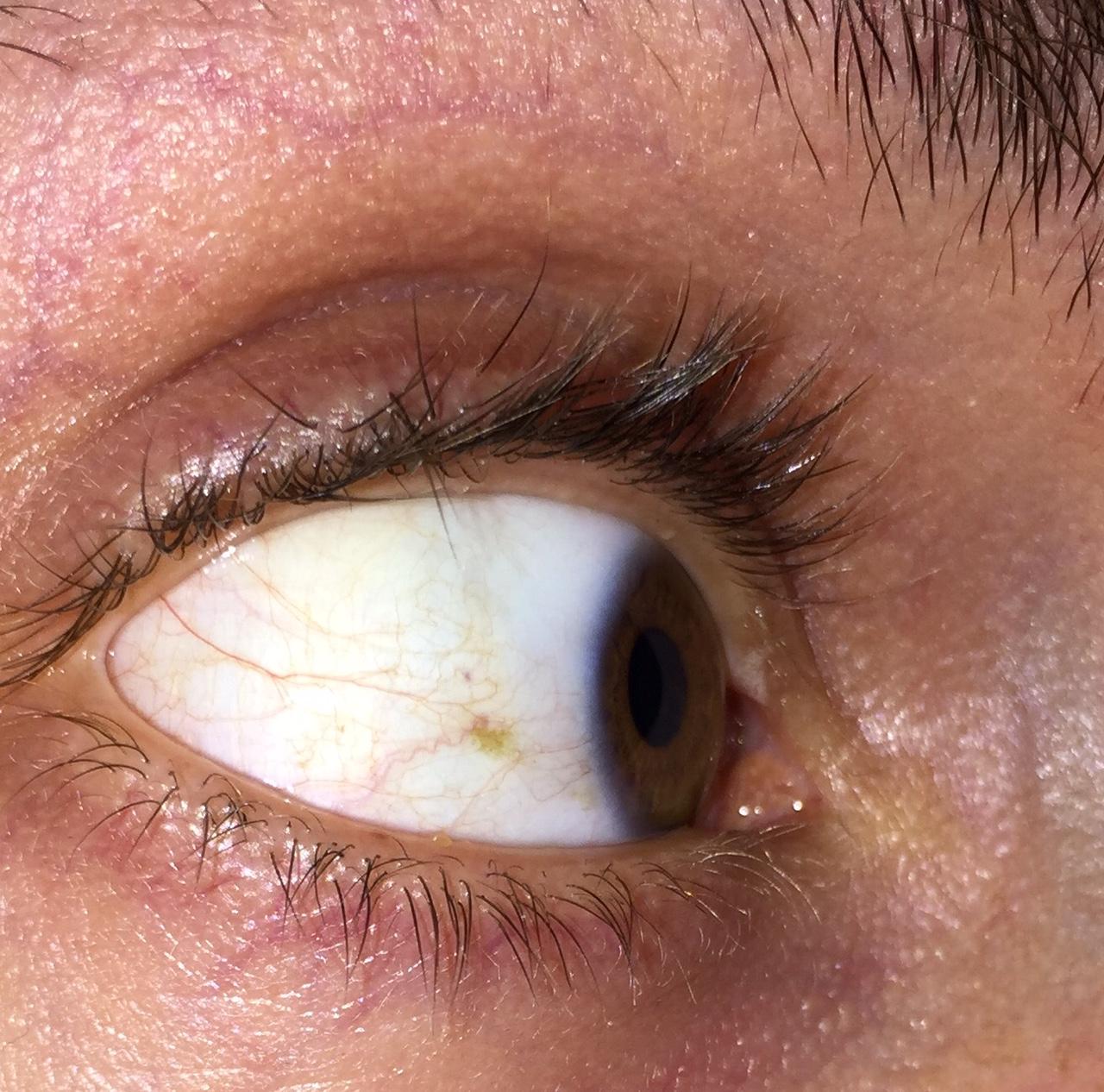 Ringe unter den Augen, um Würmer durch