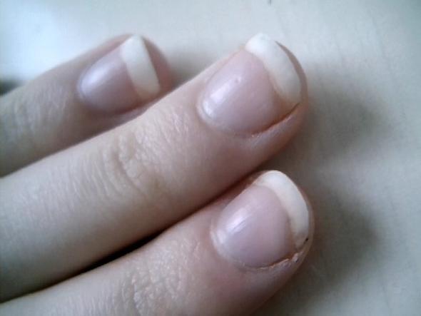 Gelber Rand Am Fingernagel. Nagelpilz? (Fingernu00e4gel)