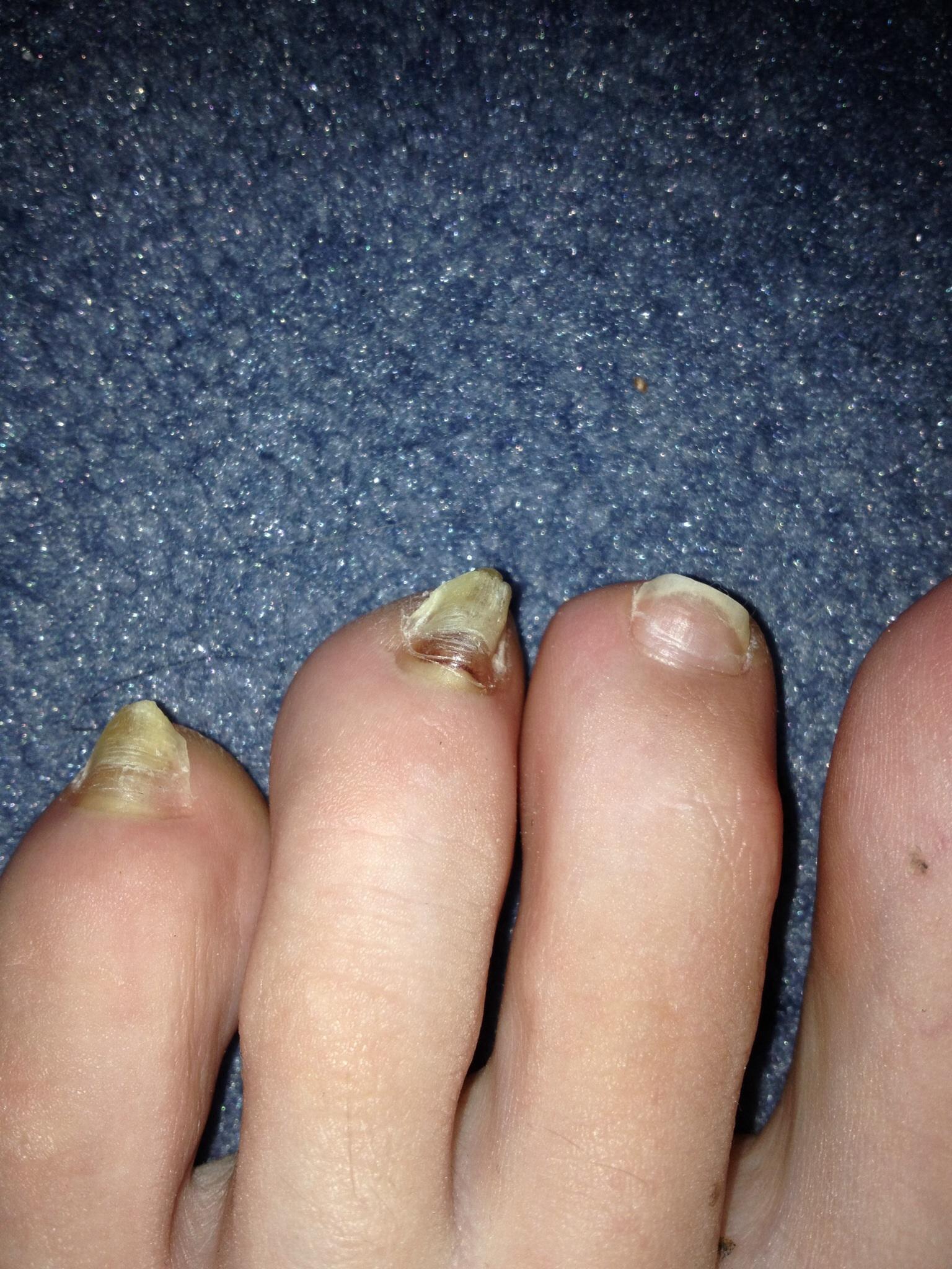 Gelber verhornter Zehennagel? (Gesundheit, Füße, Pilze)