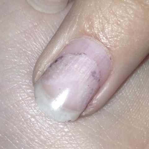 So sieht der Nagel mit den schlimmsten Liftings und den Nagellackresten aus - (Nägel, Fingernägel, Gelnägel)