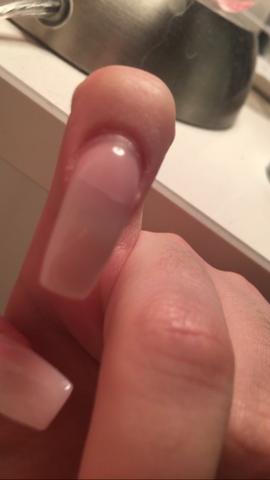 Eingerissener Nagel - (Gelnägel, eingerissen)