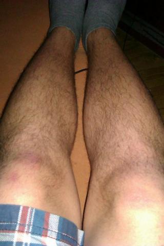 meine beine  - (Haare, Beine)