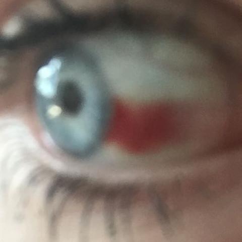 Rechtes Auge  - (Arzt, Krankheit, Augen)