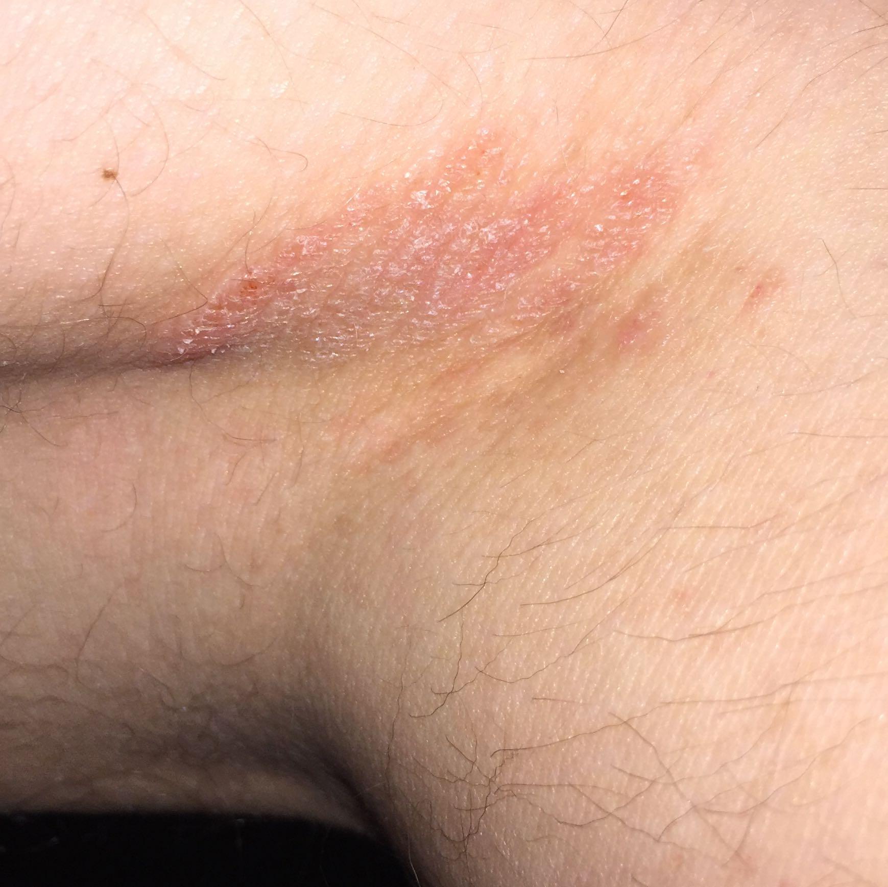 Gerötete juckende stelle (Medizin, Arzt, Haut)