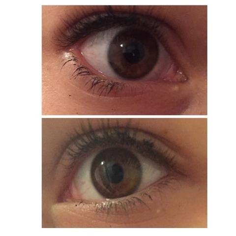 Bei dem oberen ist es bei dem Augenwinkel & bei dem unteren Bild im Unterlid.  - (Augen, Gerstenkorn)