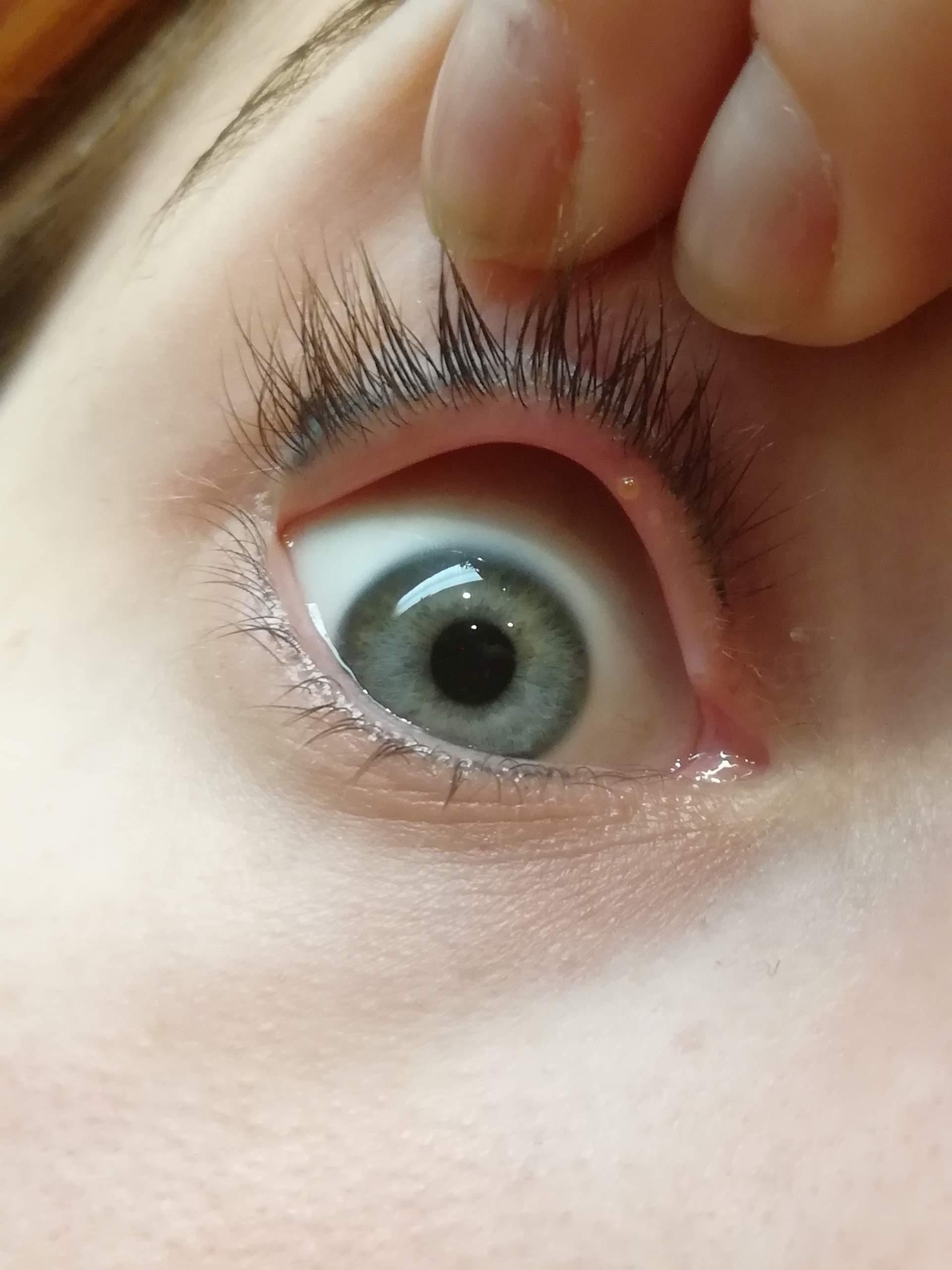 Auge geht nicht weg im hagelkorn Gerstenkorn: Ursachen