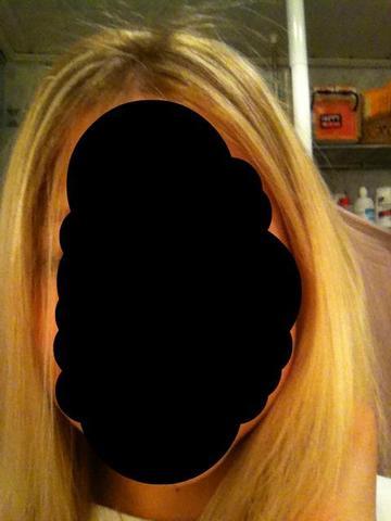 Haare fohnen nach weisheitszahn op
