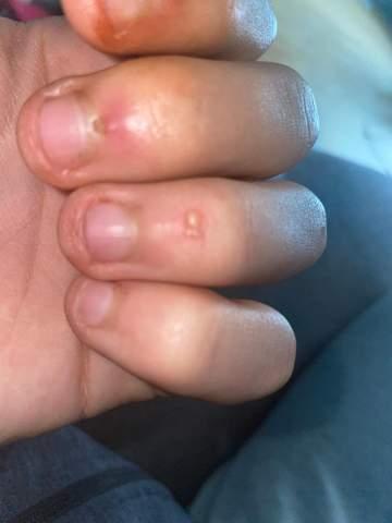 Geschlossene Blase am Ringfinger was tun?