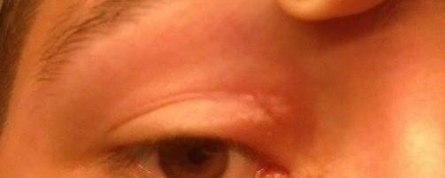 Augenlid - (Gesundheit, geschwollen, Augenlid)