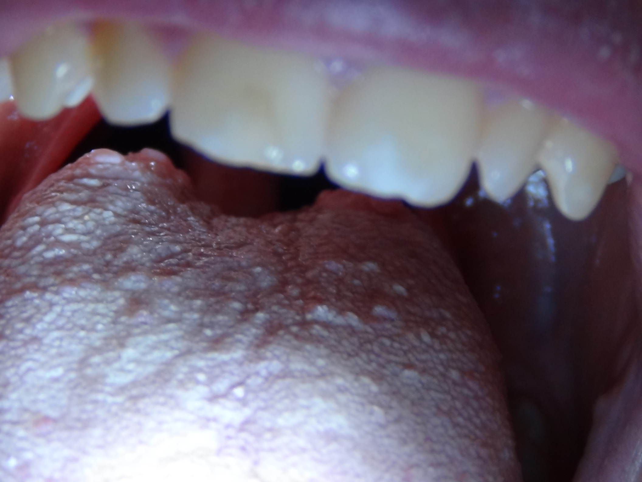Geschw lste und knubbel am hinteren ende der zunge was tun gesundheit medizin schmerzen - Nasse fenster am morgen was tun ...