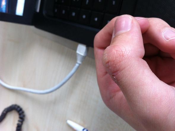 MeinGeschwür1 - (Gesundheit, Hand, kratzen)