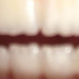 Zacken  - (Zähne, Zahnarzt, zacken)