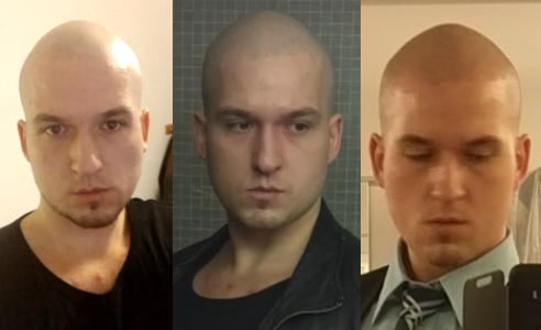 Mit 18 glatze Glatze mit