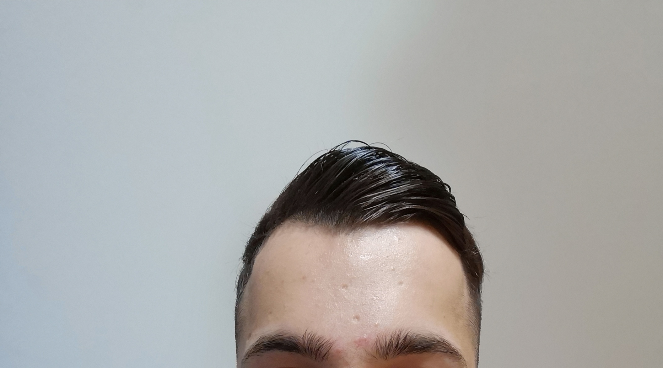 Glatze rasieren bei geheimratsecken? (Frisur, Haarausfall