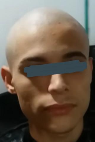 Kopf kahl rasiert