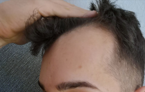 Glatze Haare Wachsen Lassen