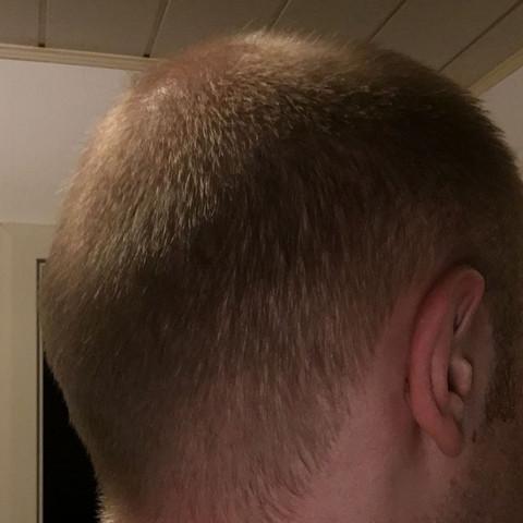 Glatzemillimeter Schnitt Haare Friseur Schneiden