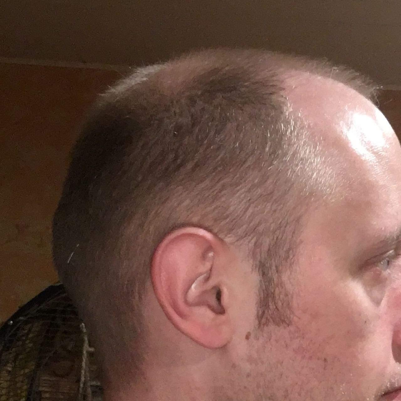 Glatze/Millimeter schnitt? (Haare, Friseur, Haarausfall)