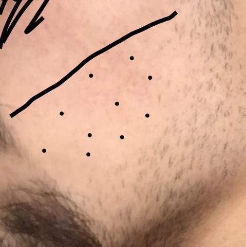 Die Punkte sind die Stelle wo ich möchte das der Bart kommt - (Medizin, Körper, Männer)