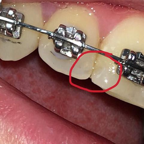 Im roten Kreis kann man die Dellen erkennen. - (Zähne, Zahnarzt, Karies)