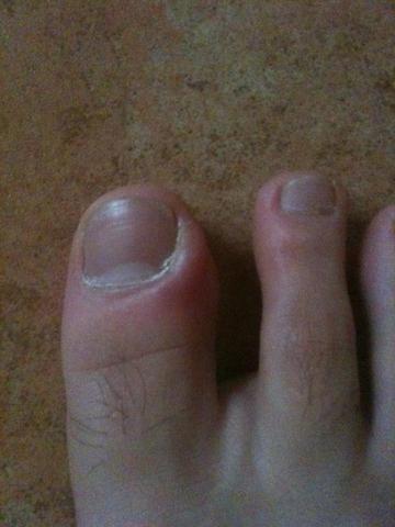 Fußzeh - (Medizin, Schmerzen, Füße)