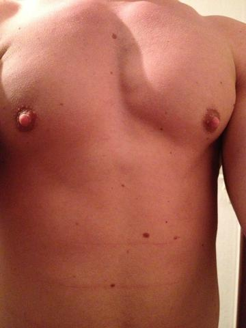 Riesige geschwollene Brustwarzen Bilder