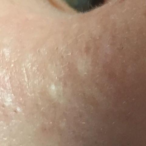 Große Poren wegbekommen?