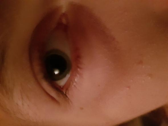 Pupillen vergrößerte Pupillen und