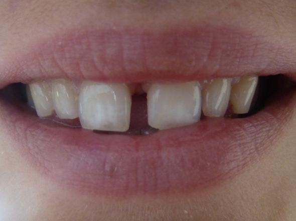 große Zahnlücke zwischen den Schneidezähnen (Zähne