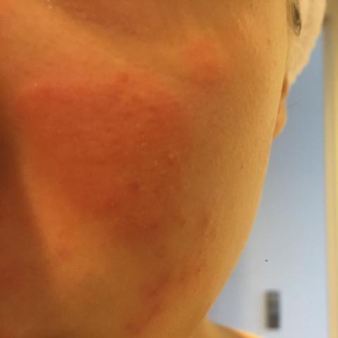 Roter Fleck auf Wange  - (Gesundheit, Haut, rötung)