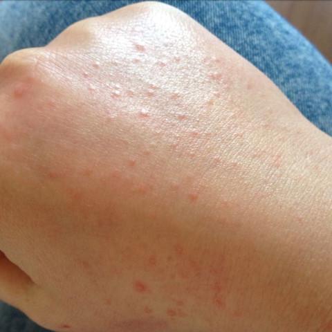 Kontaktallergie? - (Allergie, Hautarzt, Hausarzt)