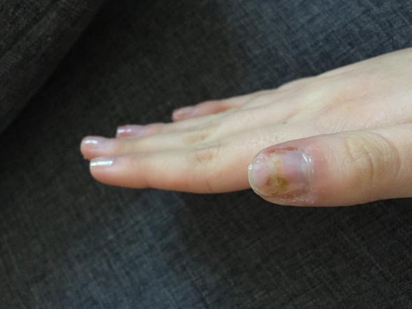 - (Gesundheit und Medizin, Nägel, Grünspan)