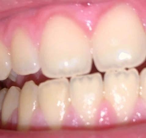 Zähne tun schwarze was Zähne: Was