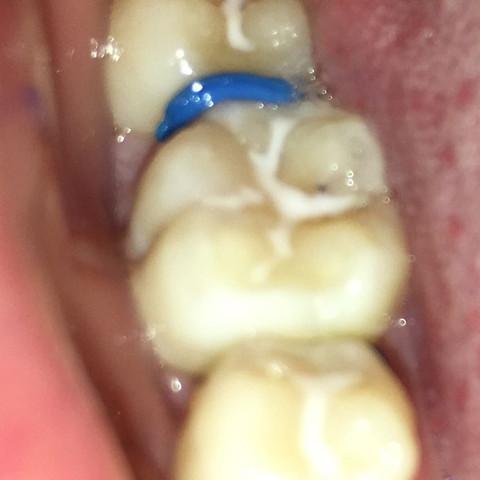 Gummis - (Gesundheit und Medizin, Zähne, Zahnarzt)