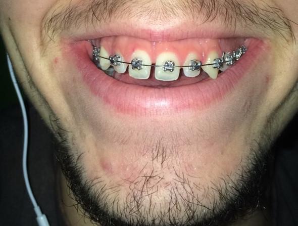 So sieht mein Lachen aus, wenn ich stark lache  - (Zähne, Wohlbefinden, Gummy Smile)