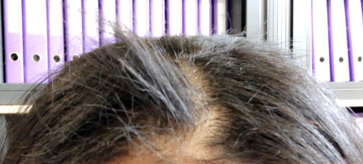 Haarabbruch Am Ansatz Wieso Haare Haarausfall Kopfhaut