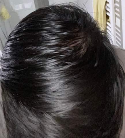 - (Haare, Haarausfall)
