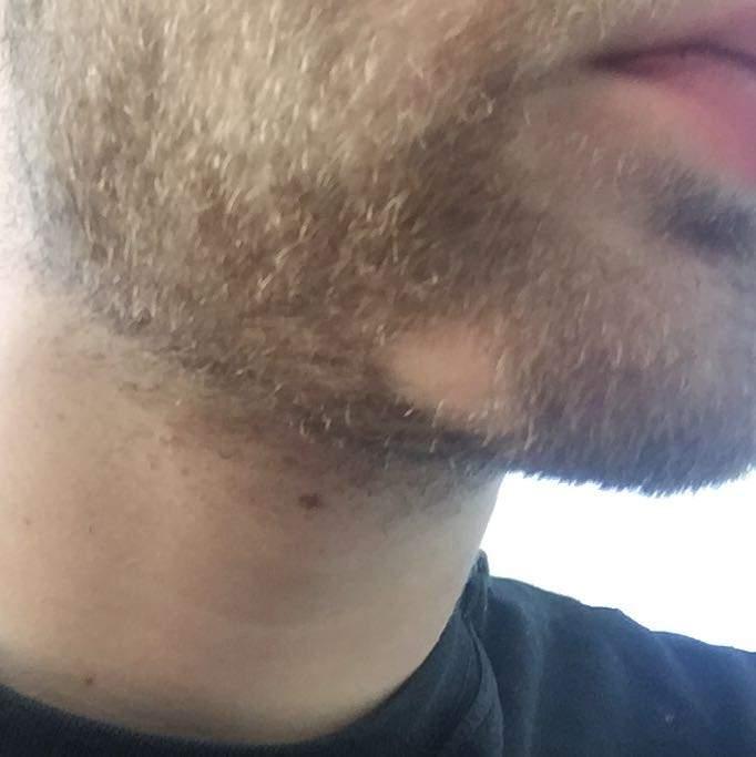 Bart kahle stellen Bartausfall: Ursachen