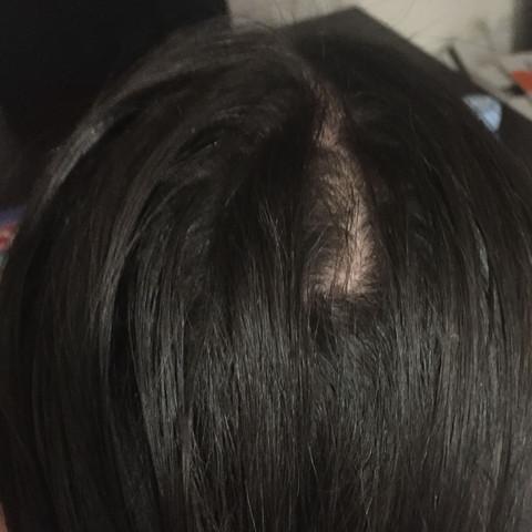Haarausfall durchs glätten (Bild)?