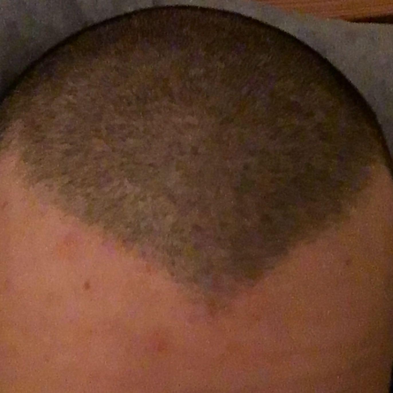 Haarausfall mit 17(männlich)? (Gesundheit, Haare, Arzt)