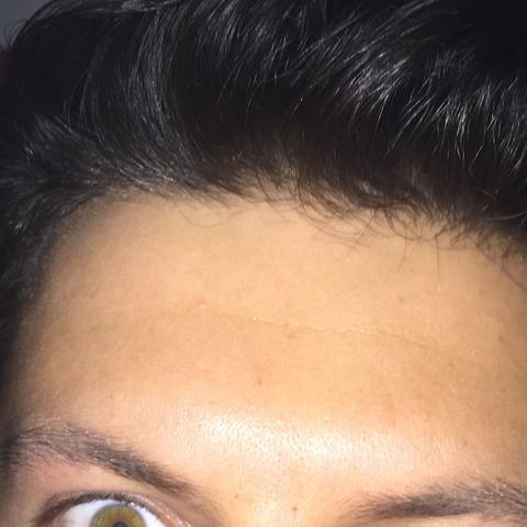 20 lichtes haar mit Haartransplantation bei