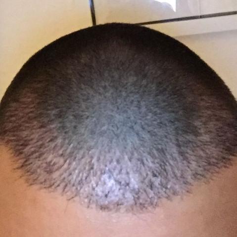 Im 5 monat  - (Haarausfall, haartransplantation, Minoxidil)