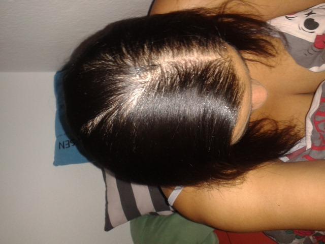 Die Präparate bei der Behandlung des Haarausfalles