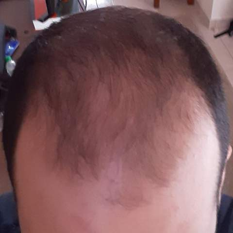Haarausfall kurze haare männer Frisuren Für
