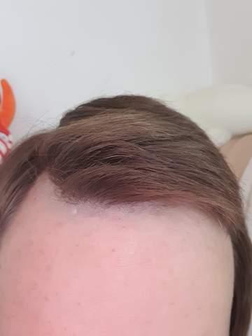 Haarausfall valette Haarausfall durch