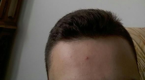 Bild  - (Gesundheit, Haare)
