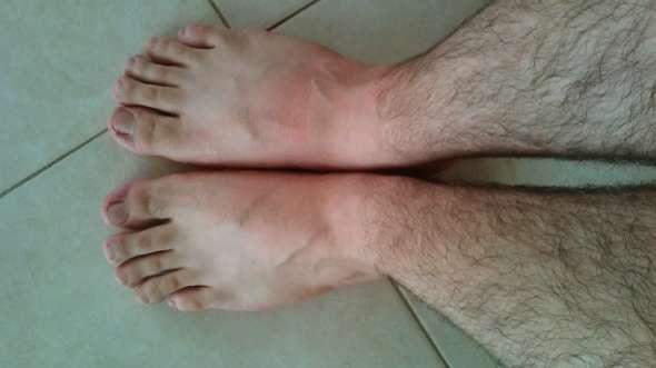 Türkin füße