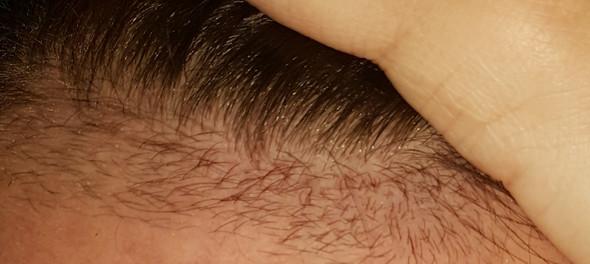 Haare An Stirn Rasiert Was Nun Rasieren Haarentfernung Babyhaare