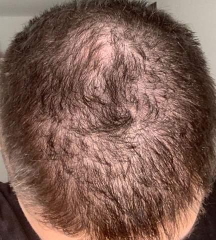 Haare sehr dünn - Ursachen & Hilfe?